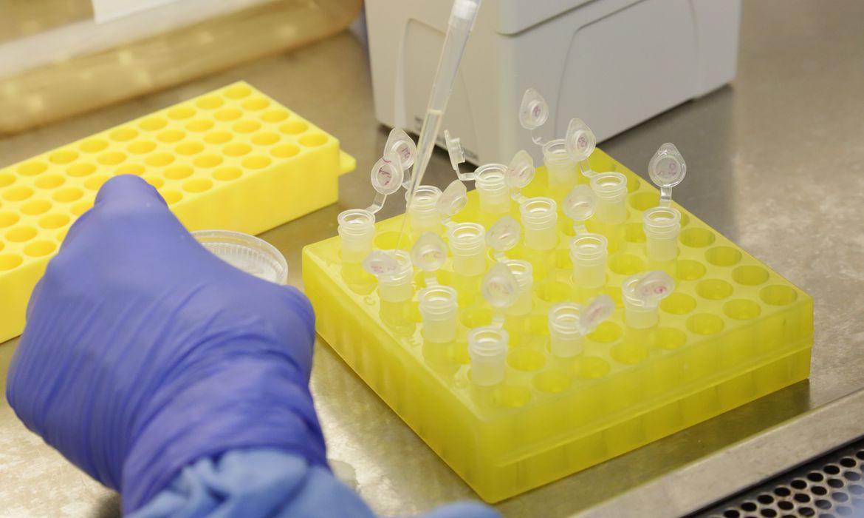 diagnostico laboratorial de casos suspeitos do novo coronavirus 2801209410