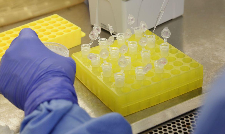 diagnostico laboratorial de casos suspeitos do novo coronavirus 2801209411