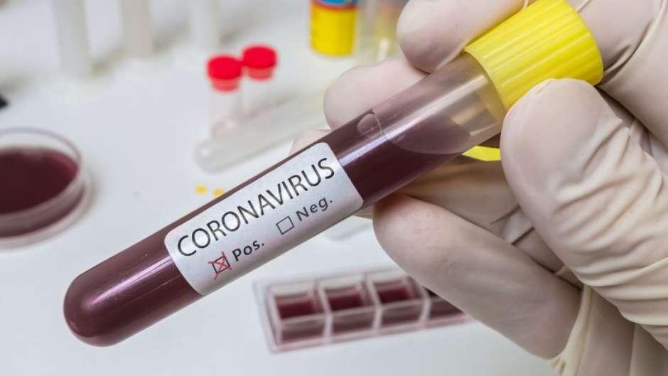 hand holds test tube for coronavirus 2019ncov analysis picture id1201511724