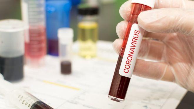 Coronavírus 1 1