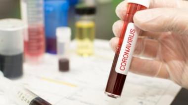 Coronavírus 15