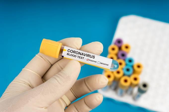 Coronavírus 10