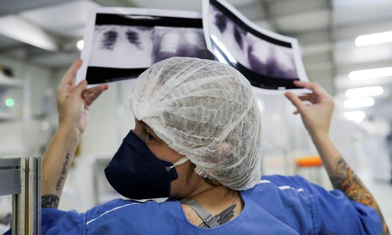 radiografia de torax coronaviruscovid 19 hospital sao paulo1205200325