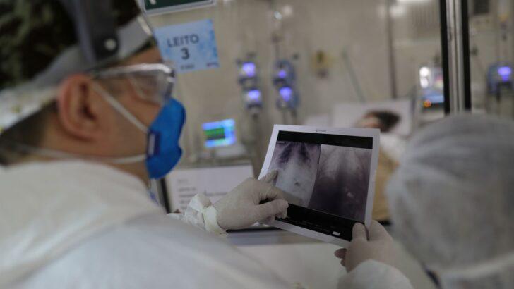 radiografia covid
