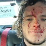 """Youtuber atira, bala ricocheteia e o acerta na cabeça: """"não sei como estou vivo"""""""