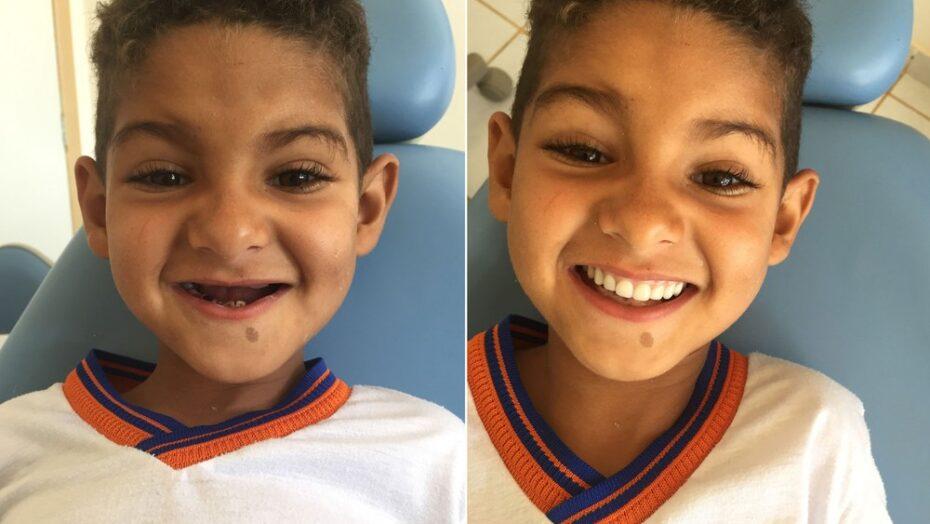 """""""agora eu posso rir porque tenho meus dentes"""", diz menino de 6 anos que teve sonho realizado por dentista"""