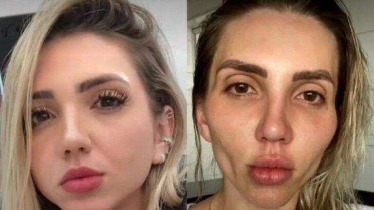 """Influenciadora se arrepende de ter feito bichectomia: """"minha cara caiu"""""""