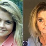 "Atriz passa por cirurgia para reconstruir rosto corroído por uso de cocaína: ""deixar de ser alvo de haters"""