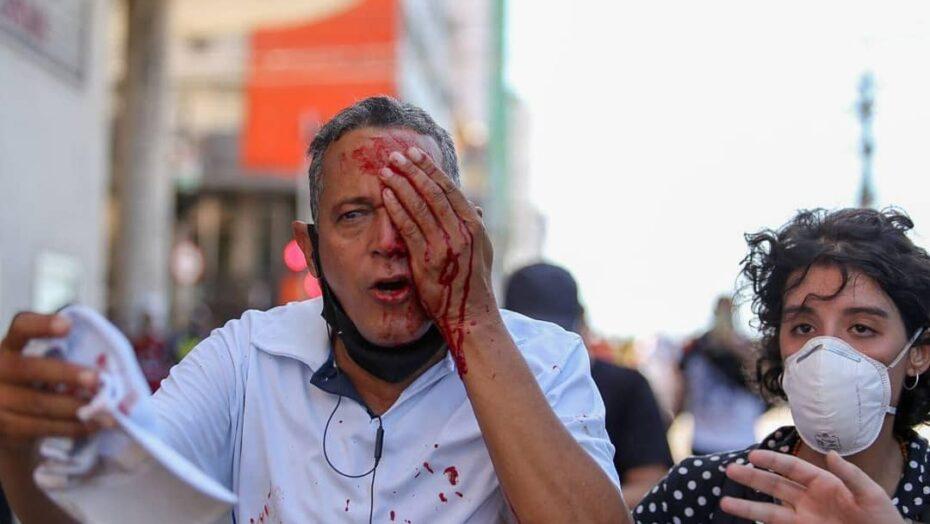 Atingido por bala de borracha, homem que não estava em protesto perde olho