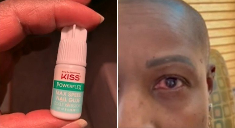 Mulher acorda para pingar colírio nos olhos, usa cola de unha por acidente e quase fica cega