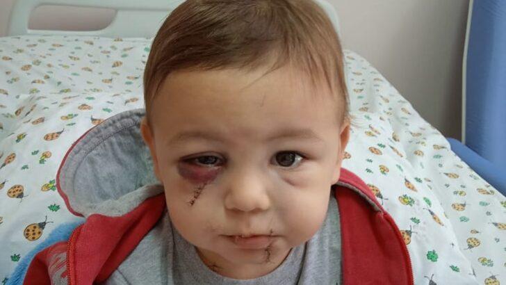 Sem previsão de alta, bebê ferido em ataque a creche tem cartaz de incentivo: 'você é um guerreiro'