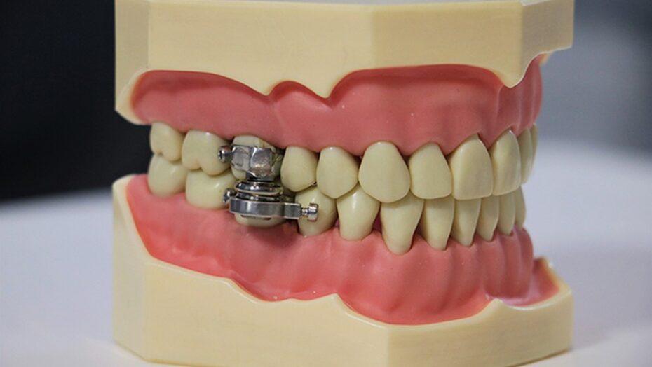 Cientistas anunciam dispositivo para perda de peso que limita a abertura da boca