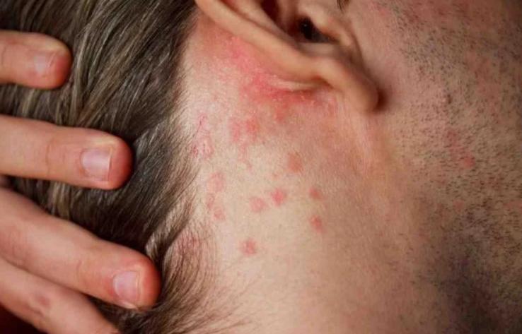 Covid: médicos estimam que 10% de infectados apresentam lesões na pele