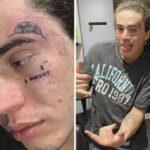 Whindersson faz novas tatuagens no rosto e fãs se preocupam
