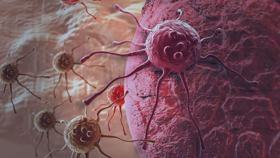 todo tumor e cancer