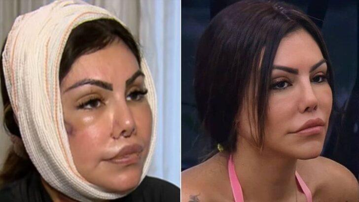 """""""a fazenda"""": como erro em harmonização facial deformou o rosto de liziane?"""